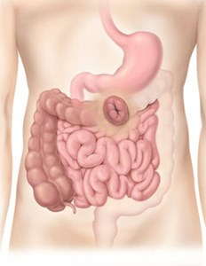 The Digestive System showing a Transverse Colostomy in the Colon